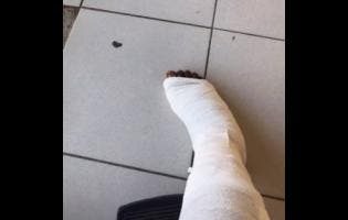 Nicardo's right leg is now in a cast, after being bitten by crocodile.