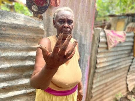Norma Burnett sometimes has to use her bare hands to dig away mud that settles in her home.