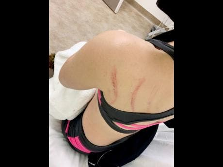 Samantha J showing the bruises on her back.